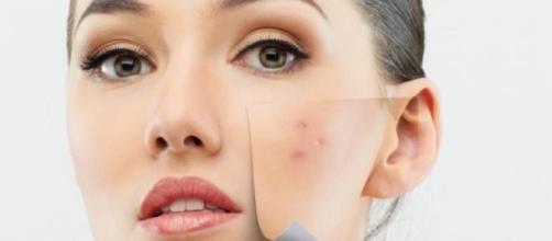Cuida tu piel para lucir siempre bella
