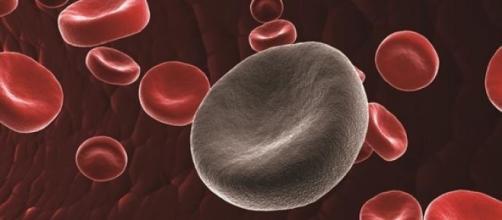 """La leucemia: el """"cáncer de la sangre"""""""