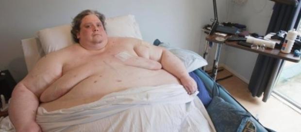 Keith Martin, l'uomo più grasso del mondo