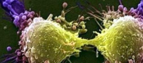 La lotta ai tumori scarsi risultati