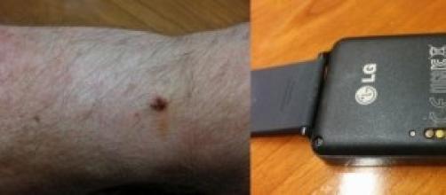 corrosionGate per LG G Watch
