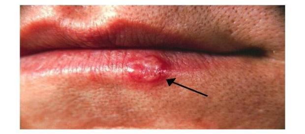 grano en el labio con rojez y pus