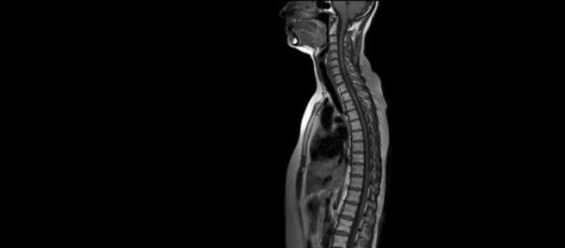 coloana vertebrala, mobil,