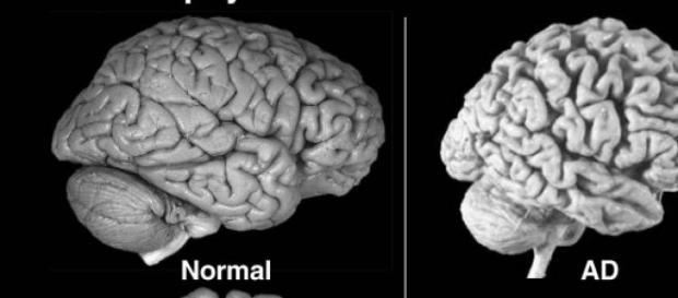 Comparación entre un cerebro sano y con Alzheimer