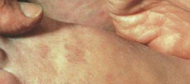 boala celiaca, adolescenti