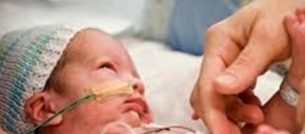 El bebé prematuro necesita excelentes cuidados
