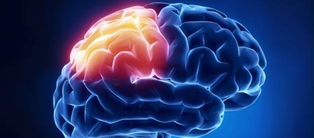 Ictus cerebral, fármaco para reducir los daños