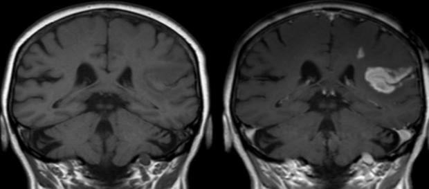 Radiografía de derrame cerebral o ictus