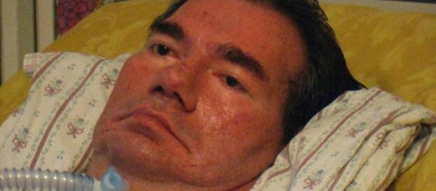 Piergiorgio Welby: stadio finale della malattia.