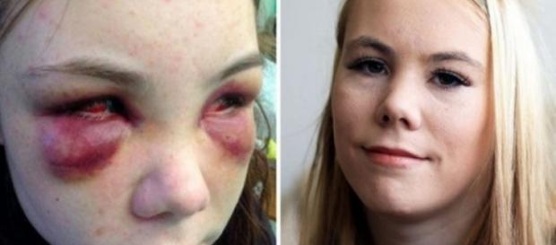 Adolescentă de 18 ani chinuită și bătută