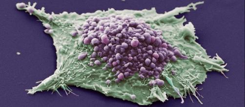 Muestra de células epiteliales de cancer de pulmon