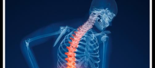 Osteoporosi, prevenzione e cura