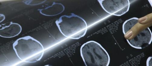 Médica com raio x de um paciente com microcefalia