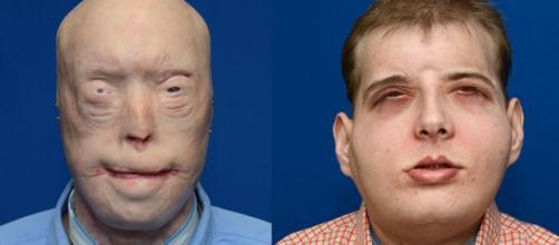 El antes y el después de Patrick Hardison