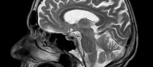 MRI scan. Pixabay commons. No attrition
