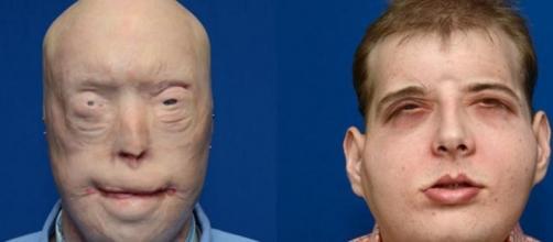 Patrick Hardison, trasplante de cara completo