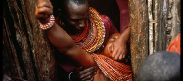 FGM o practică deosebit de dură
