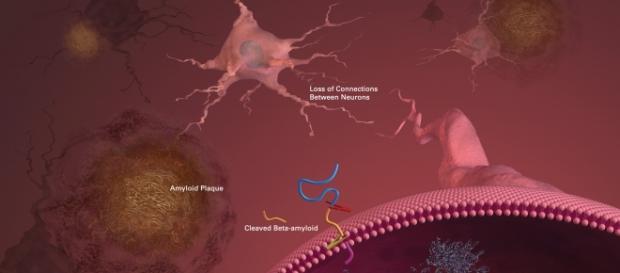 Placche amiloidi e perdita di sinapsi