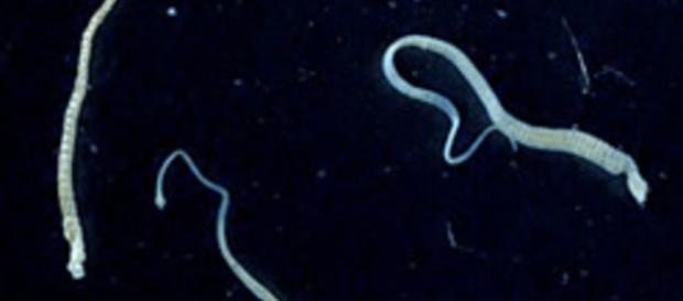 Der Zwergbandwurm unter dem Mikroskop
