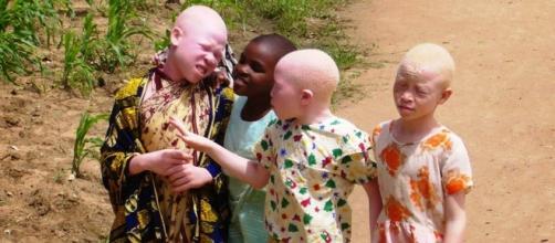 Albinos da Tanzânia são discriminados