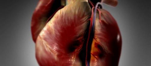 I'infarto nel miocardio in un'immagine in 3D