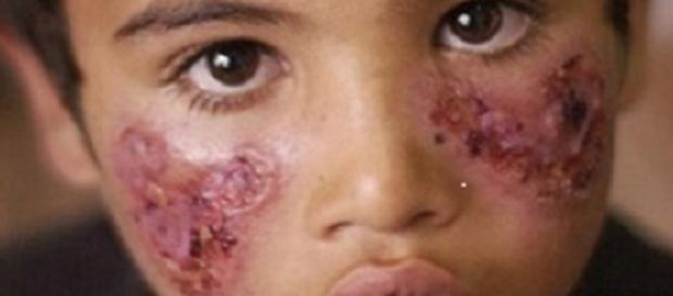 spread of flesh-eating disease Leishmaniosis