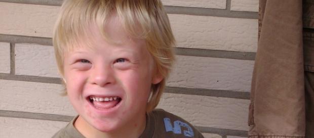 Un bambino con sindrome di Down