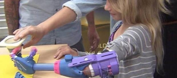 Prótese plástica 3D facilita a vida das crianças