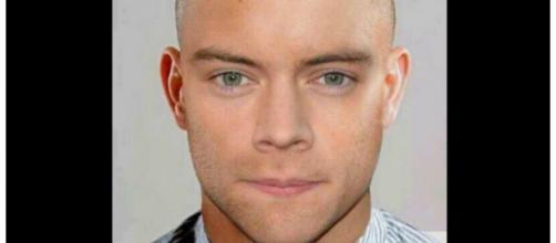 Fãs fizeram montagem de Harry sem cabelo