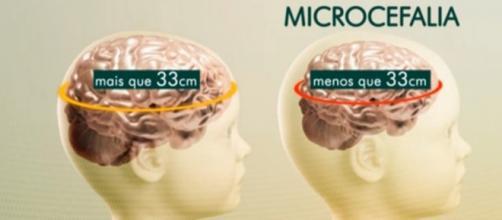 Primeiro caso de microcefalia em São Paulo