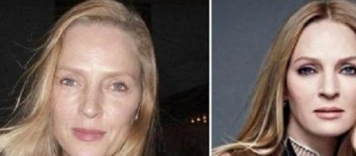 Uma, antes y después de su operación estética