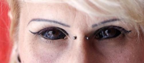 A tinta é injetada na camada superficial do olho