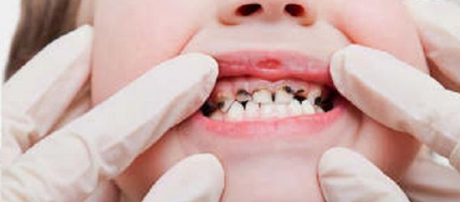 Próchnica zębów u małych dzieci coraz większym problemem