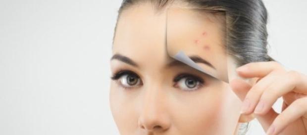 Problemele cauzate de acnee si ten gras