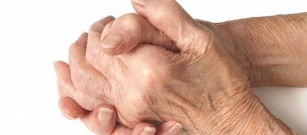 osteoartrita, tratament, boala