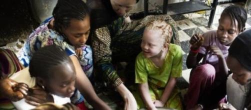 Les organes des albinos ont une valeur de 600$.