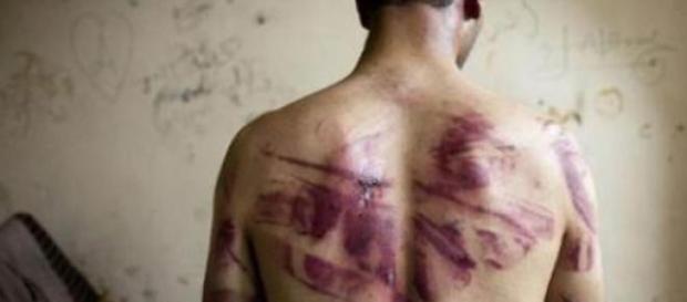 Des images de corps torturés sont exposées à l'ONU