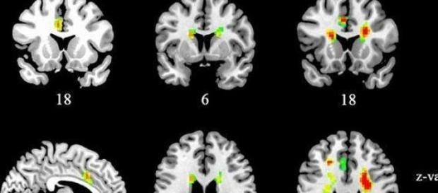 Photo from Frontiers in Human Neuroscience
