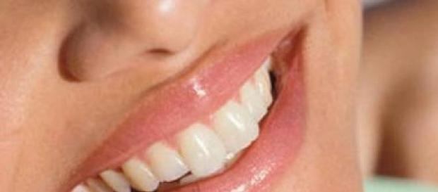 Albirea dintilor prin metode naturale.