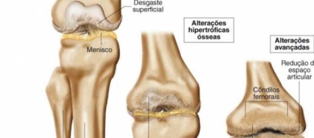 Tratamentos de artrose no joelho