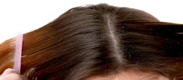 Previne sau trateaza scalpul uscat