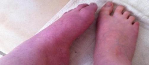 Pied gauche souffrant d'algodystrophie