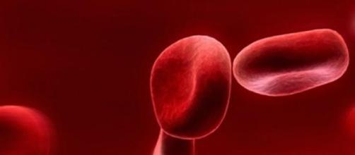 La anemia por falta de hierro es muy común