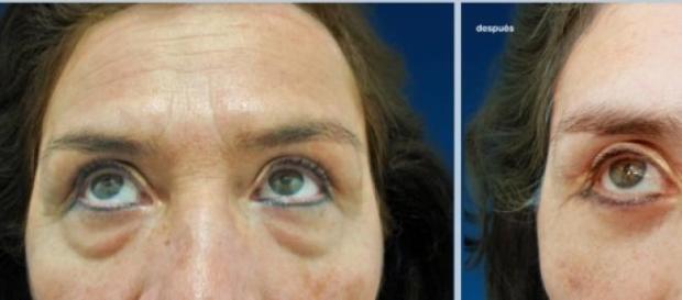 Antiestéticas bolsas en los ojos