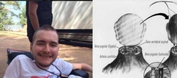 Valery Spiridonov, tânărul dispus să fie ''cobai''