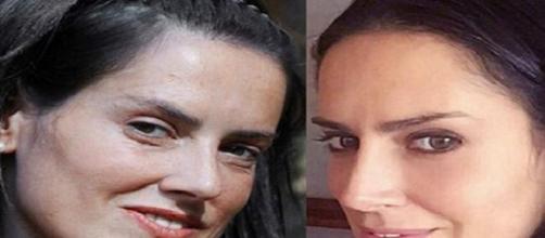 Adriana antes y después de la operación