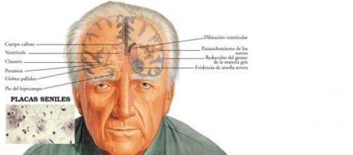 Psicopatologia del Morbo di Alzheimer.
