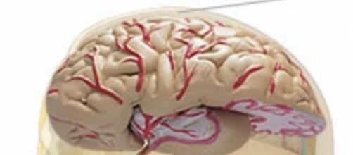 Alzheimer pode vir a ter cura