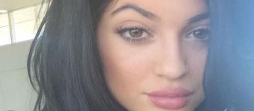 Kylie Jenner e seus lábios famosos