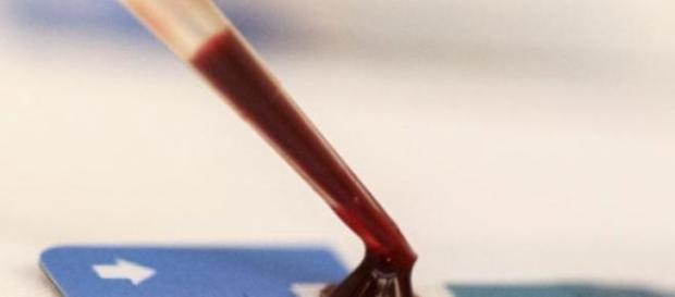 autoteste, depistare Hiv/Sida